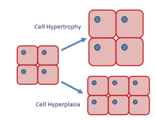 hyperplasia diagram muscle hypertrophy - physiological adaptations in response ...